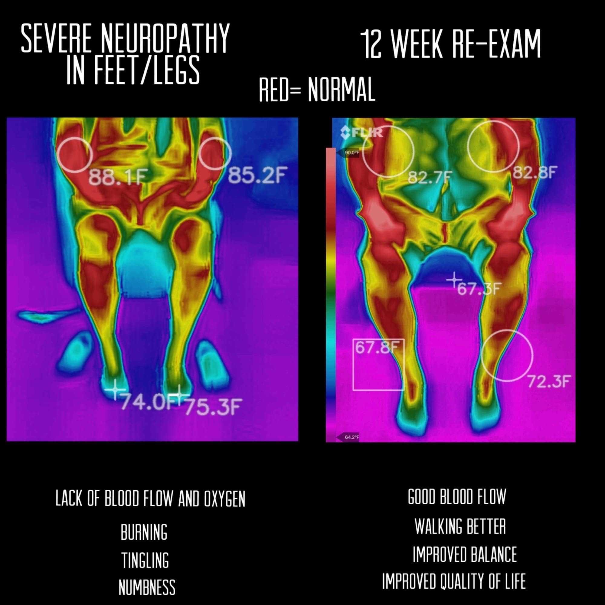 Thermal Image for Neuropathy